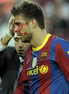 Foto de Sorpresiva derrota 0-2 del FC Barcelona con el Hércules